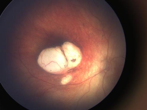 Pesquisa da Fiocruz revela lesões oculares graves relacionadas à infecção do vírus zika